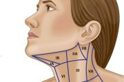 When Should a Neck Dissection be Carried Out?