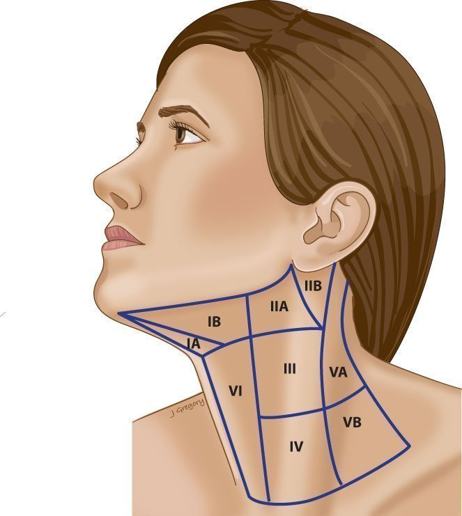 Neck dissection levels